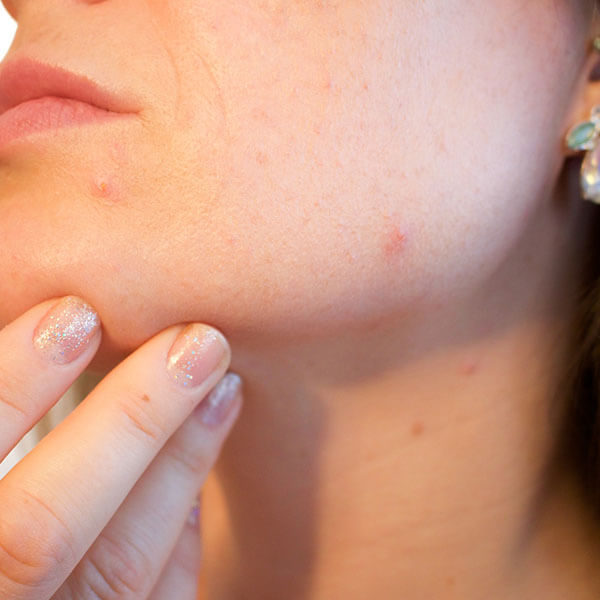 Promoción tratamiento acné