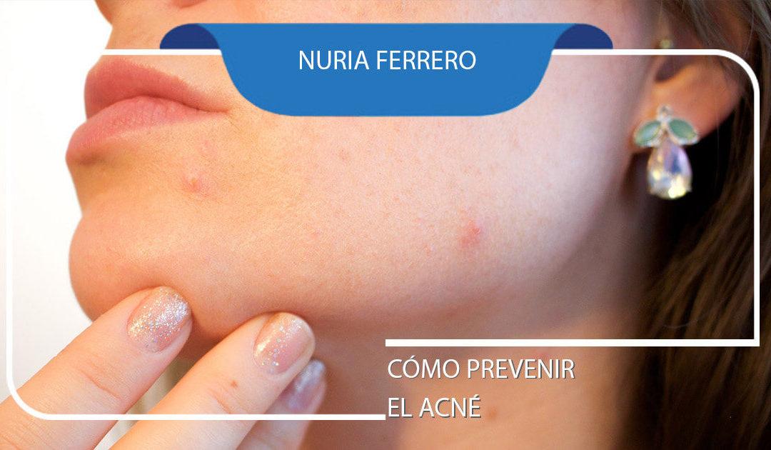 ¿Cómo prevenir y tratar el acné?